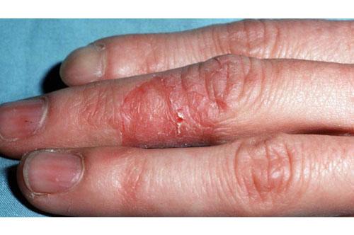 Irritan Dermatit