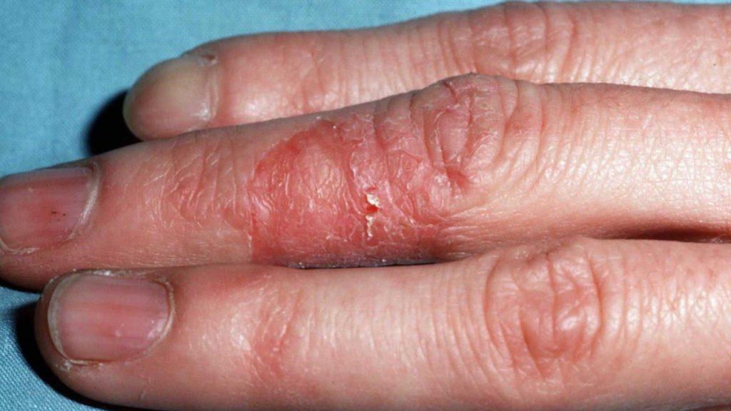Irritan Kontakt Dermatit