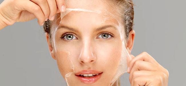 Kimyasal Peeling Nedir?