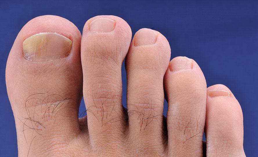 Tırnak Hastalıkları Nedir?