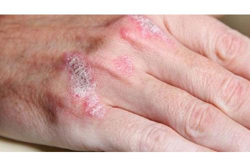 Zührevi Hastalıklar