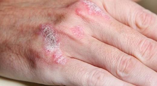 Zührevi Hastalıklar Nelerdir?